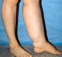 Lower Limbs affected