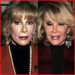 Joan Rivers - Then and Now - her face has lost all expression!