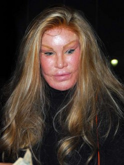 A few steps too far!  She started Cosmetic Surgery to keep her straying husband but he left her anyway.