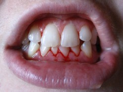 A bacterial infection of the gums causes them to bleed