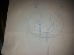 This is a drawing of my horseshoe kidney and the ureters with an arrow pointing out where the blockage is...