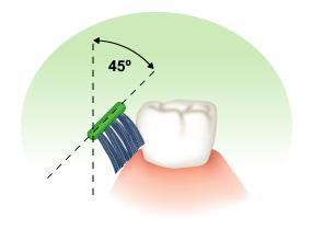 45° angle brushing