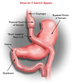 Gastric Bypass Surgery: Pros And Cons