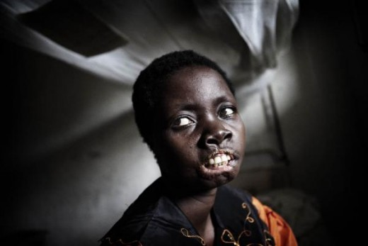 Victim of the LRA's cruelty