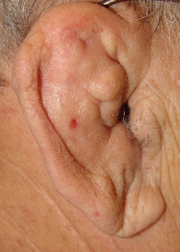 Cauliflower ear is caused by friction encountered when the ear rubs against the side of the head or the flanks of another player in the scrum/ruck