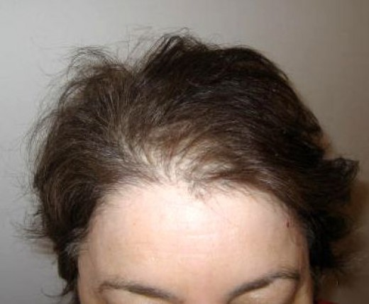 Some hair thinning is unavoidable after gastric bypass surgery