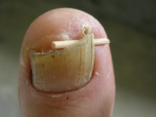 "My doctor recommended using a toothpick to pry the nail away from the skin and ""train"" the nail to grow straight."
