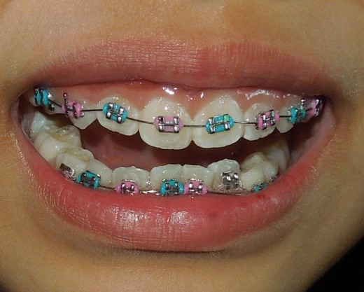 Braces on a kid - First Day of Wearing Braces