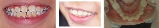 Crooked teeth, gap between teeth, overbite, crowded teeth.