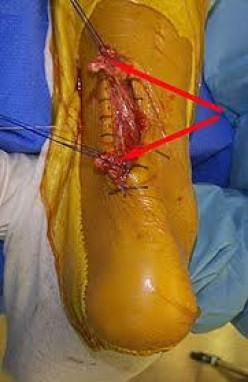Levaquin Causes Torn Tendons