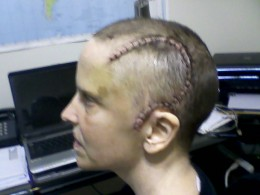 After surgery for epilepsy