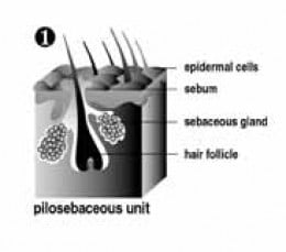 """Acne begins in pilosebaceous units, which consist of sebaceous glands and a single hair follicle. The sebaceous glands produce an oily substance called sebum."""