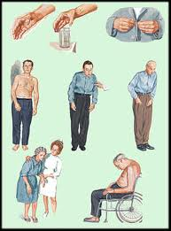 Sign and symptoms often seen in parkinson patients