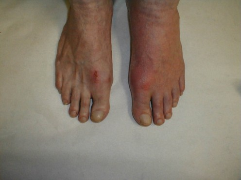 This is what gout looks like on the feet.