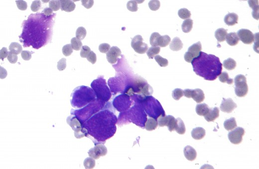 Small cell lung cancer cytology
