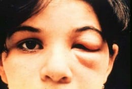 If A Child Has A Swelling Of The Right Eye Like This You Need To Take Them To The Doctor. They May Have Been Infected With Chagas Disease.