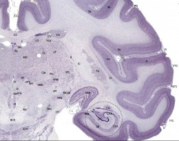 The cerebral cortex is shown here in the outer layer, in dark purple