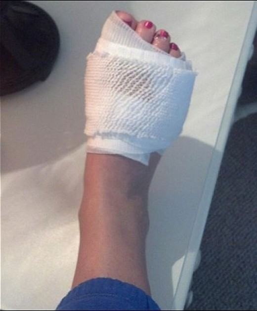 Megan Konkler's bandaged foot after shark attack