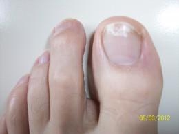 Beginning toenail fungus picture