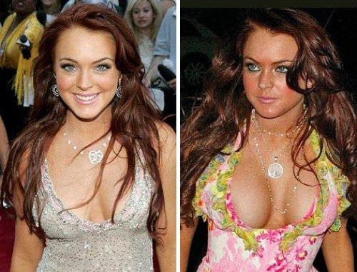 Troubled Actress here before and after her surgery.