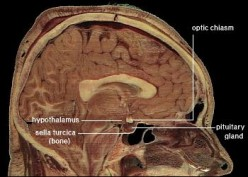 """""""public domain because it contains materials that originally came from the National Institutes of Health."""" see: http://en.wikipedia.org/wiki/File:LocationOfHypothalamus.jpg"""