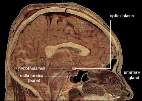 """public domain because it contains materials that originally came from the National Institutes of Health."" see: http://en.wikipedia.org/wiki/File:LocationOfHypothalamus.jpg"