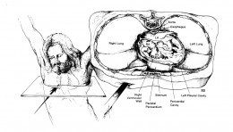 In order to pierce the pericardium as described in the Gospels, Longinus had to thrust the spear in a precise location so as not to damage any major organs. This implies someone knowledgeable about internal human anatomy.