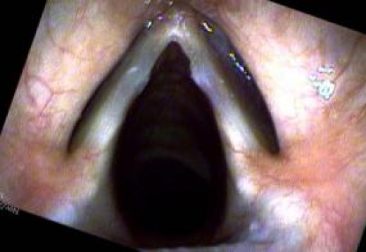 "Notice the raised ""bumps"" close to the V shape vocal cords. These are polyps or possibly nodules."