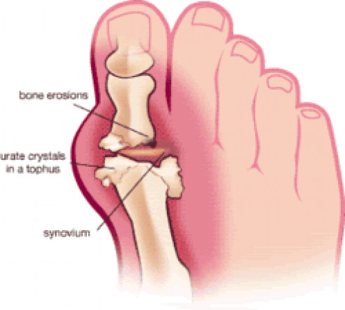 Gout in large toe