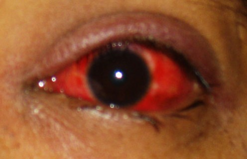 Viral conjunctivitis has a watery discharge and the eye becomes quite red.