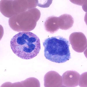 Neutrophil (left), Monocyte (right) stained with Giemsa. White blood cells are the foot soldiers of our circulatory system.