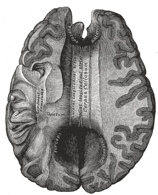 Corpus callosum (viewed from above)