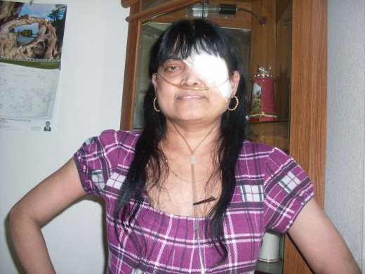 After Left eye surgery.