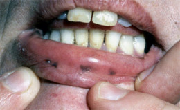 Peutz Jeghers syndrome may also present with pigmentation of the lips.