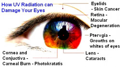 Sun Damage to Eyes - Effects, Risks, Prevention and Treatment