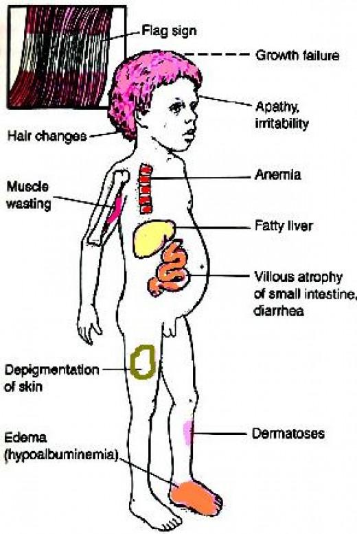 Symptoms of kwashiorkor, or dietary protein deficiency.