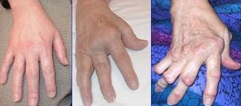 Progression of rheumatoid arthritis