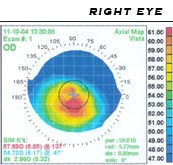 A corneal topography showing astigmatism. The red and yellow area shows elevation or where the astigmatism is located. This patient's axis would most likely be about 90 - 105 degrees.