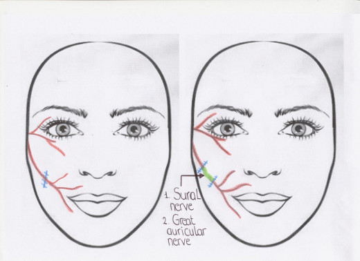 Smile Surgery for Persistent Bell's Palsy