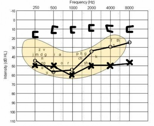 "A typical audiogram for conductive hearing loss. The ""x"" & ""o"" show the hearing for the left and right ears when sound is presented through earphones. When the middle ear is bypassed, however, the hearing level demonstrates normal levels (brackets)."
