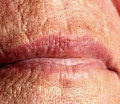 How to Fix Wrinkly Lips - Find the Cause of Lip Wrinkles, Remedies