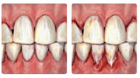Teeth and Pregnancy - the gums bleed and become swollen and spongy
