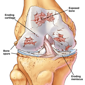 Diagram of a knee joint that is worn out.