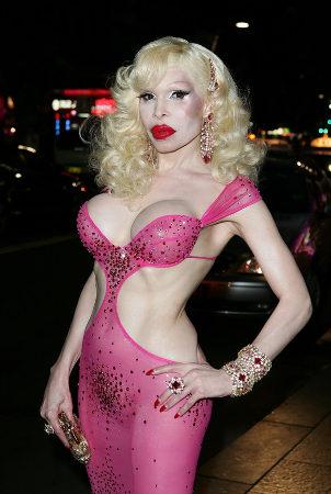 Amanda Lepore showing off her plastic surgery.