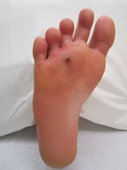 A puncture wound can be a high risk infection injury.