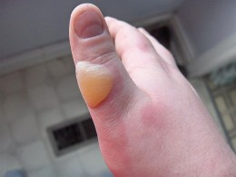A burn caused by scalding. This type of wound has produced a blister to protect underlying skin.