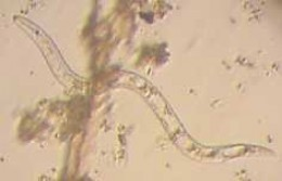 Lungworms are in a group of parasitic worms called Nematodes