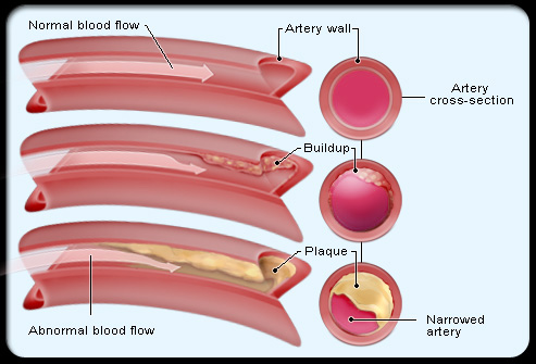 pic of artery comparison
