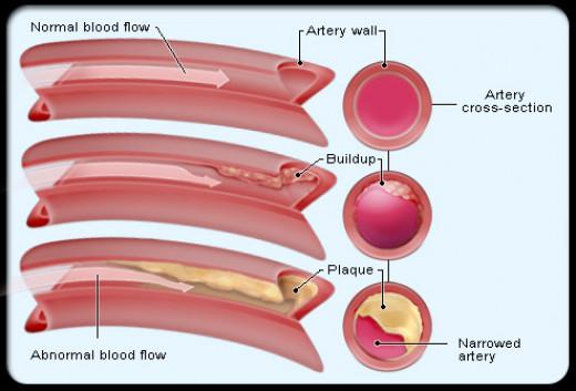 pic of artery comparison