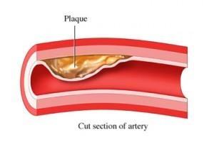 pic of cholesterol in artery